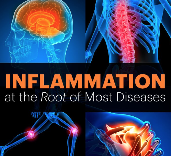 Inflammation: What is it and how does it affect our health
